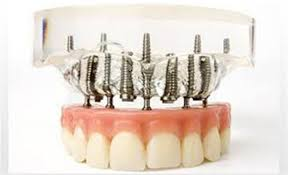 implantologia a carico immediato All on four